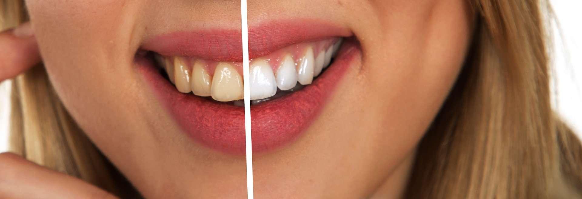 Efekty wybielania zębów